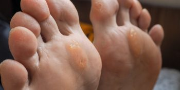 Painful Corns, Hard, Dry Skin and Callus Removal