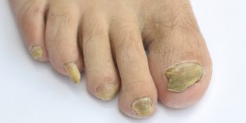 Fungal Nail Treatment and Management