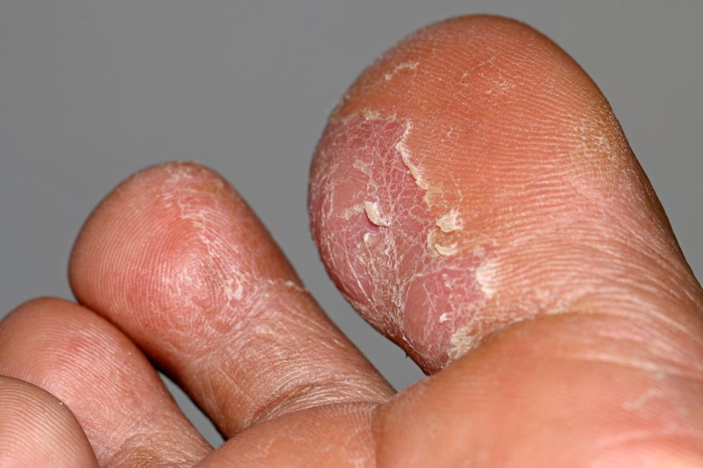 Wart athlete s foot, Verruca on foot - Verruca athlete s foot
