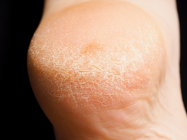 Closeup of cracked dry skin on heel