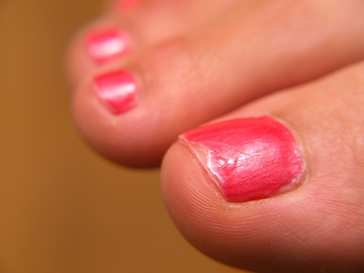 Closeup of pink nail paint, on feet, pedicure